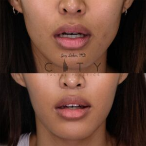 Elelyft Lip Lift Case 5   Elelyft Upper Lip Lift, Dr. Gary Linkov Facial Plastic Surgeon