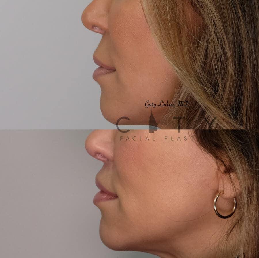 Elelyft Lip Lift Case 6 | Elelyft Upper Lip Lift, Dr. Gary Linkov Facial Plastic Surgeon