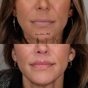 Elelyft Lip Lift Case 6   Elelyft Upper Lip Lift, Dr. Gary Linkov Facial Plastic Surgeon