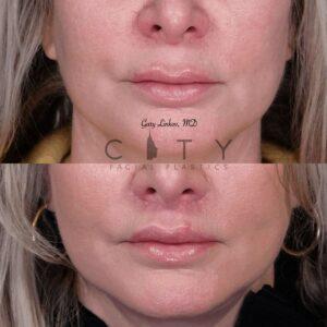 Elelyft Lip Lift Case 7   Elelyft Upper Lip Lift, Dr. Gary Linkov Facial Plastic Surgeon