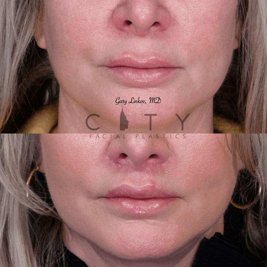 Elelyft Lip Lift Case 7 | Elelyft Upper Lip Lift, Dr. Gary Linkov Facial Plastic Surgeon