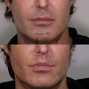 Elelyft Lip Lift Case 8   Elelyft Upper Lip Lift, Dr. Gary Linkov Facial Plastic Surgeon