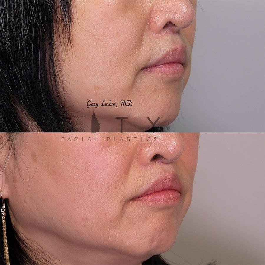 Elelyft Lip Lift Case 9 | Elelyft Upper Lip Lift, Dr. Gary Linkov Facial Plastic Surgeon