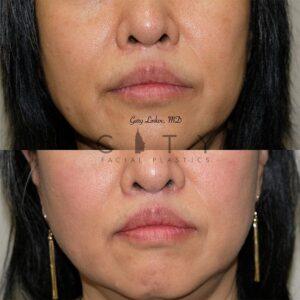 Elelyft Lip Lift Case 9   Elelyft Upper Lip Lift, Dr. Gary Linkov Facial Plastic Surgeon