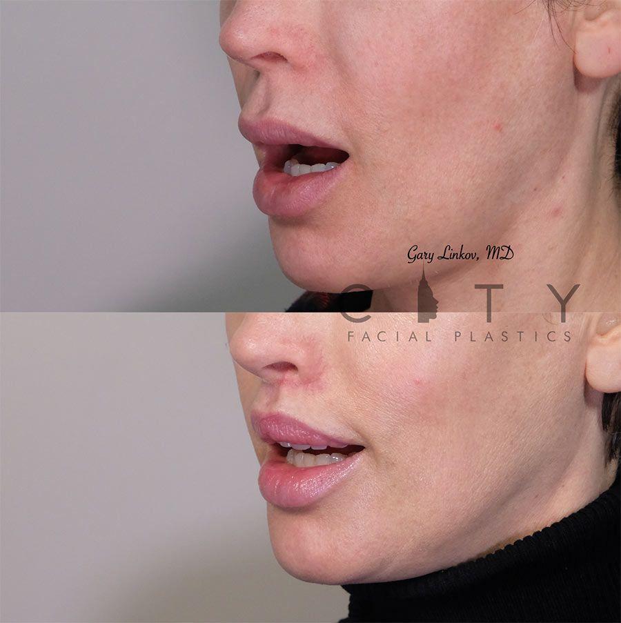 Elelyft Lip Lift Case 10 | Elelyft Upper Lip Lift, Dr. Gary Linkov Facial Plastic Surgeon