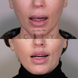 Elelyft Lip Lift Case 10   Elelyft Upper Lip Lift, Dr. Gary Linkov Facial Plastic Surgeon