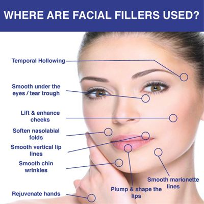 Areas Where Facial Fillers Are Used
