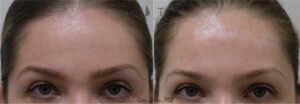 Facial Injectables Case 2 | NYC Facial Fillers Dermal Injections, New York Lip Fillers