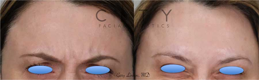 Facial Injectables Case 3   NYC Facial Fillers Dermal Injections, New York Lip Fillers