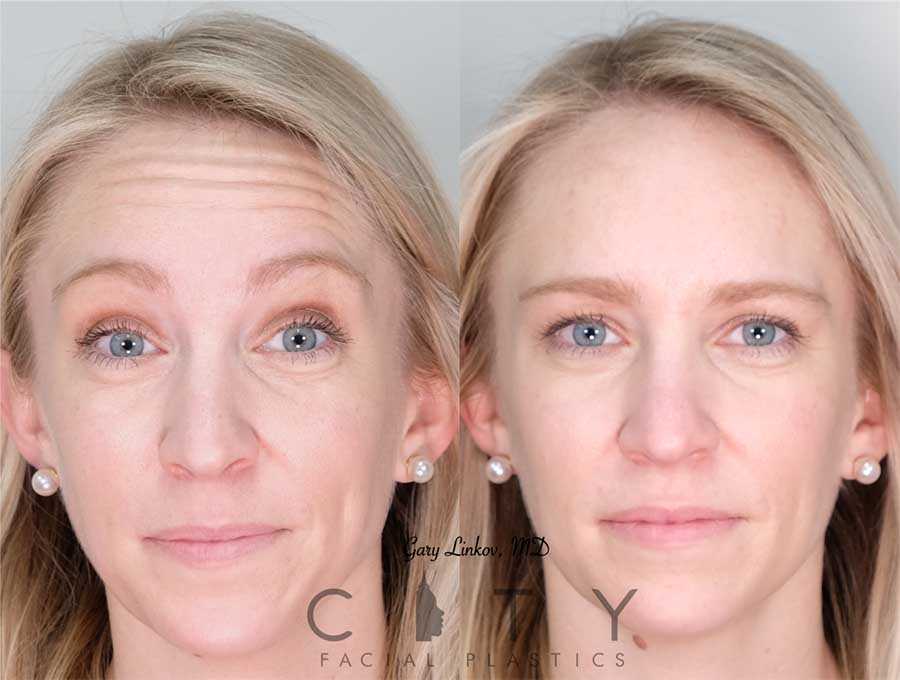 Facial Injectables Case 4 | NYC Facial Fillers Dermal Injections, New York Lip Fillers