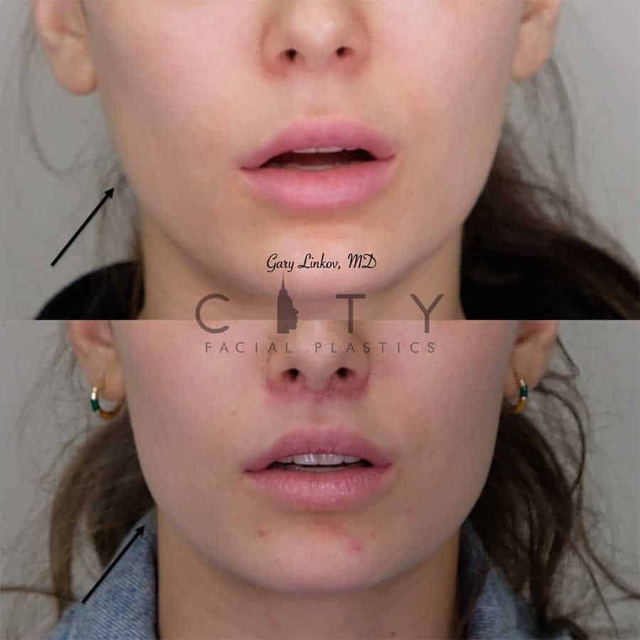 Facial Injectables Case 6 | NYC Facial Fillers Dermal Injections, New York Lip Fillers