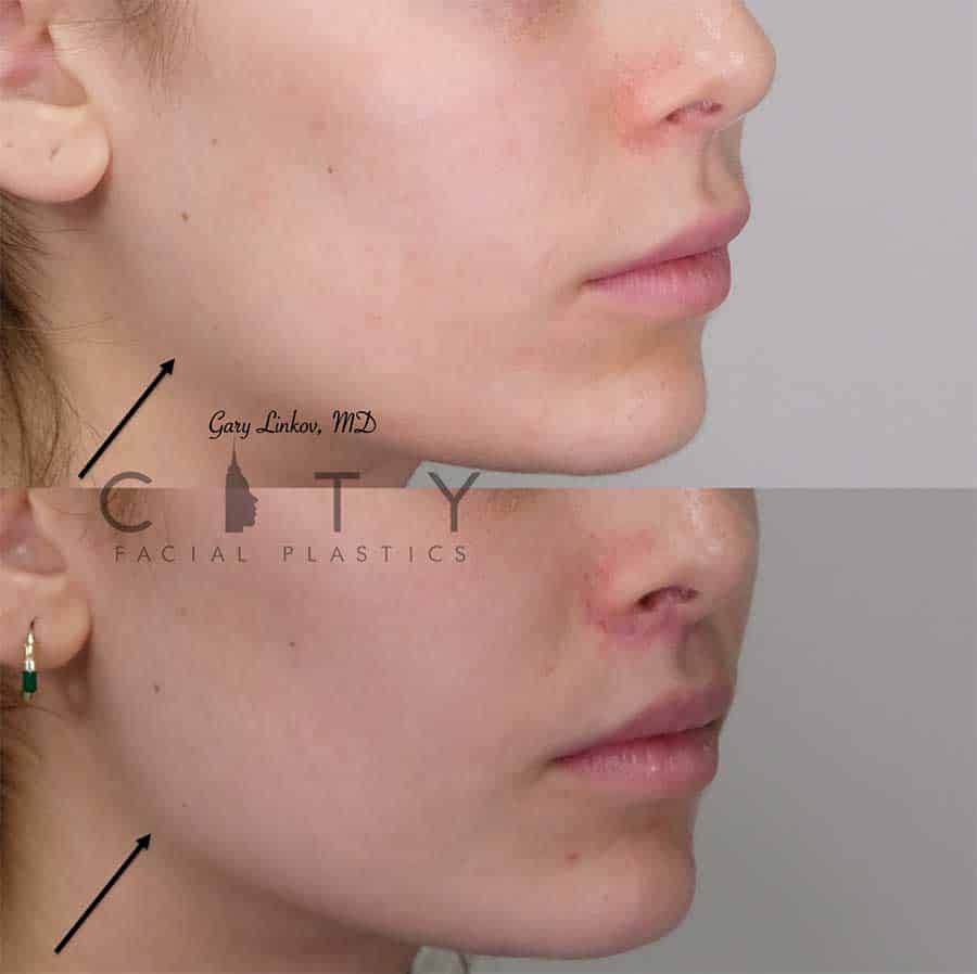 Facial Injectables Case 6 | NYC Facial Fillers Dermal Injections