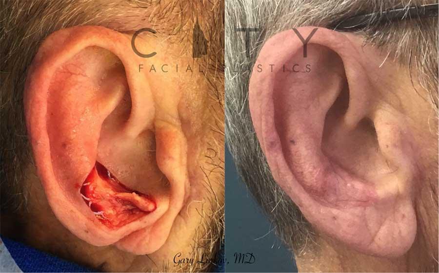 Facial reconstructive surgery case 2 | NYC Facial Reconstructive Plastic Surgery, New York Face Trauma