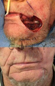 Facial reconstructive surgery case 3   NYC Facial Reconstructive Plastic Surgery, New York Face Trauma