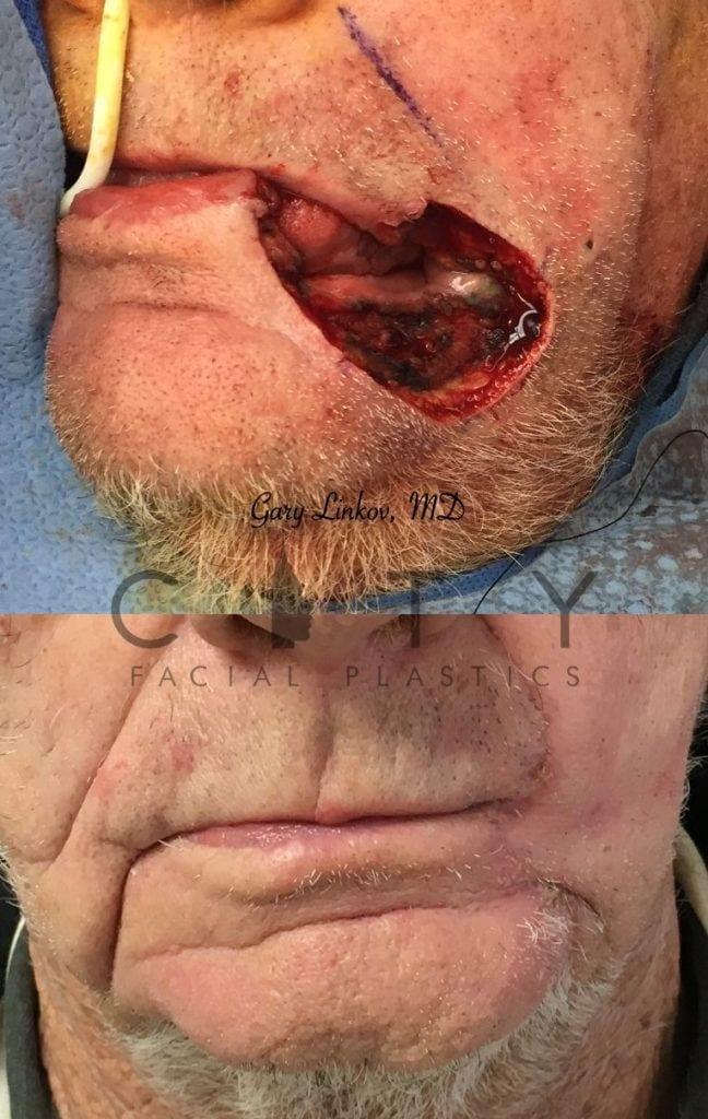 Facial reconstructive surgery case 3 | NYC Facial Reconstructive Plastic Surgery, New York Face Trauma