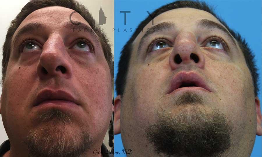 Facial reconstructive surgery case 4 | NYC Facial Reconstructive Plastic Surgery, New York Face Trauma