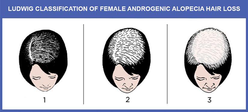 Female Hair Loss Treatment in NYC | New York Androgenic Alopecia Women