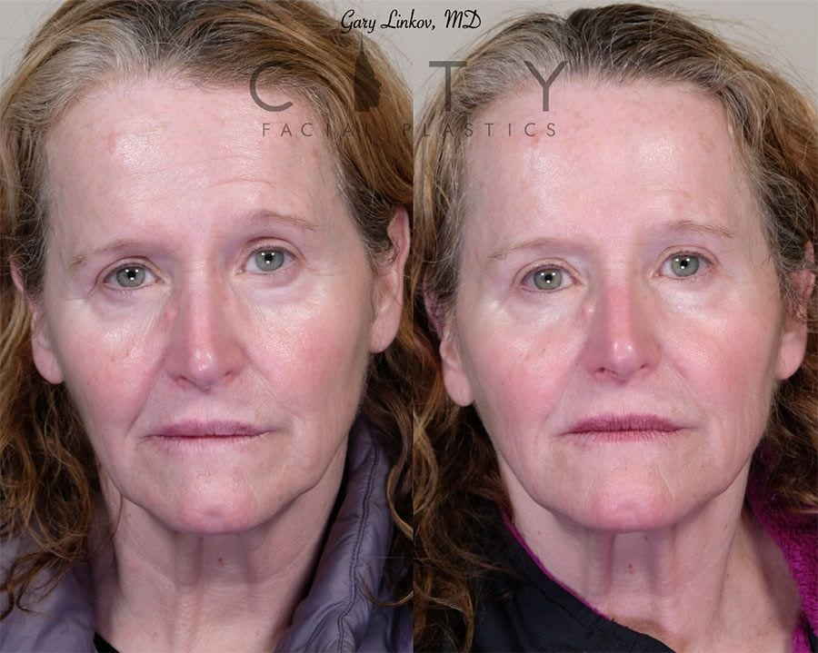 Forehead lift Case 2   NYC Forehead/Brow Lift Surgery, New York Endoscopic Browlift
