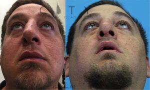 Functional Rhinoplasty Case 1 | New York Nose Reshaping Surgery