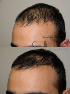 Hair loss treatment PRP Case 1 | NYC Alopecia Treatment, New York Therapy for Hair Loss