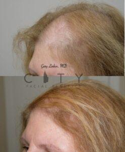 Hair loss treatment PRP Case 1 | NYC Female Hair Loss Treatment, New York Androgenic Alopecia Women
