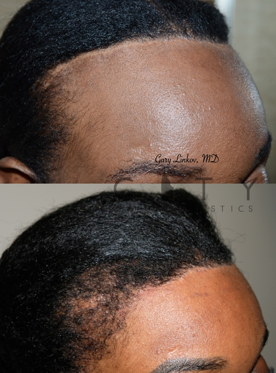 Hair transplant 1 right oblique