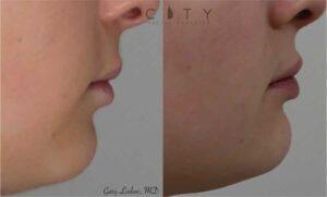 Lip Enhancement Case 1 | NYC Lip Lift, New York Lip Enhancement Plastic Surgery
