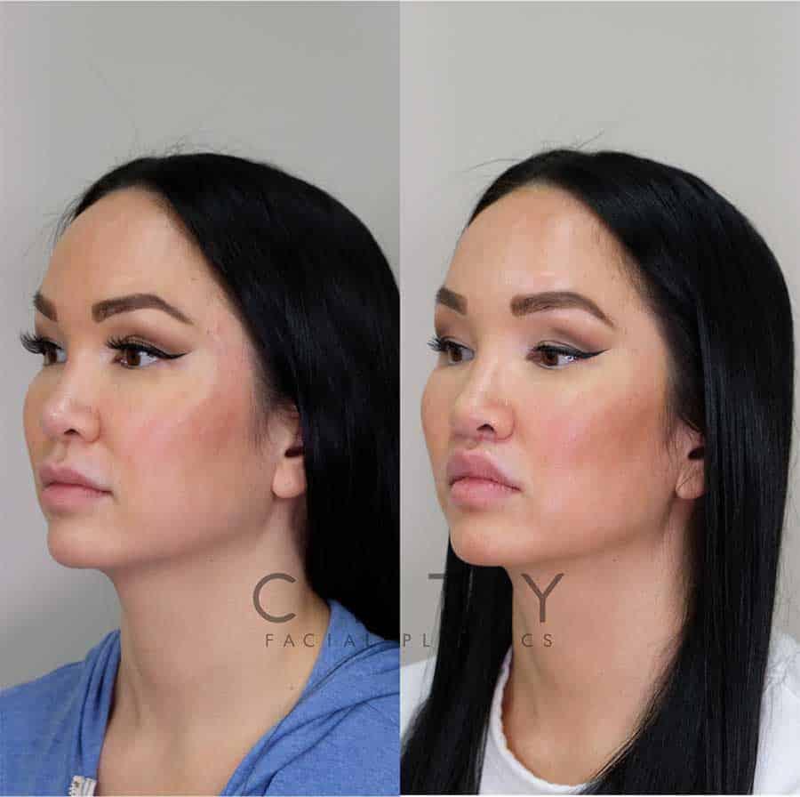 Lip Enhancement Case 3 | NYC Lip Lift, New York Lip Enhancement Plastic Surgery