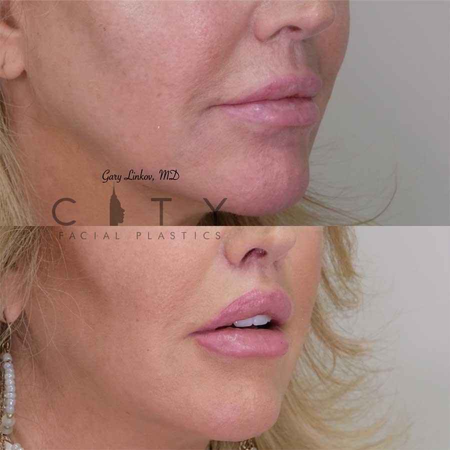 Lip Lift Revision Case 1 | NYC Lip Lift Revision Surgery