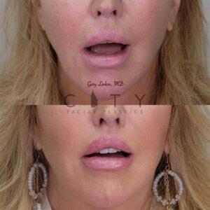 Lip Lift Revision Case 1   NYC Lip Lift Revision Surgery