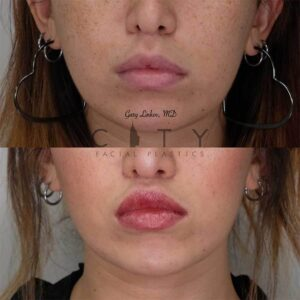 Lip Lift Revision Case 2   NYC Lip Lift Revision Surgery