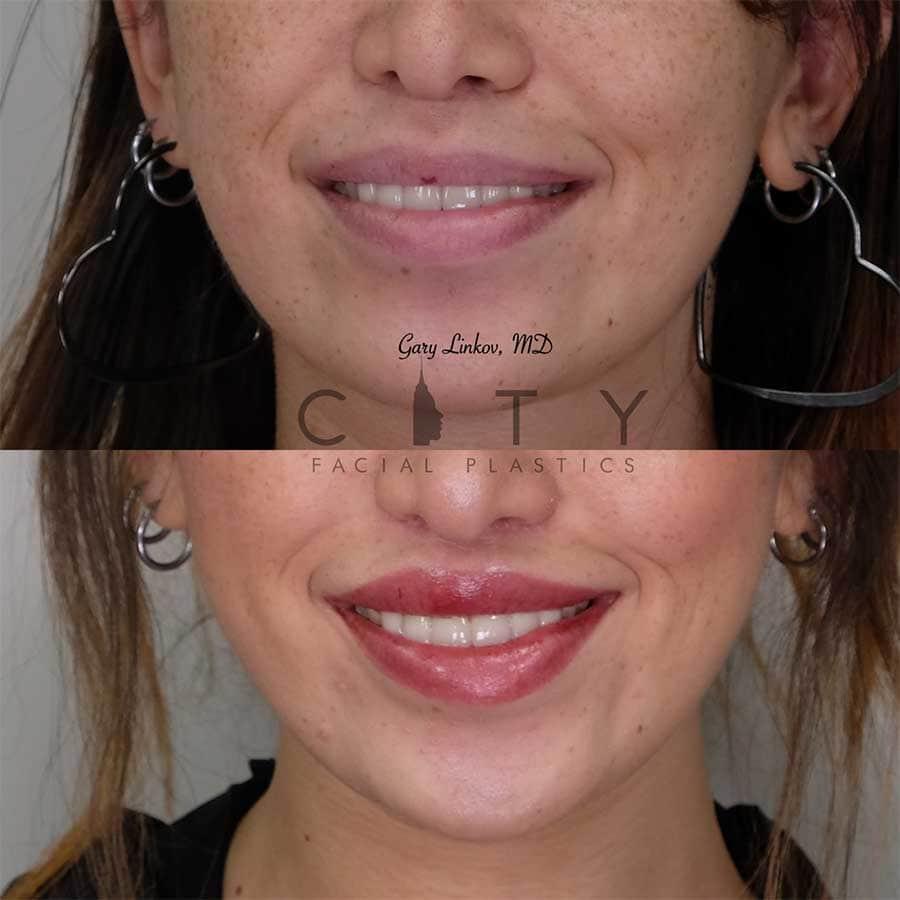 Lip Lift Revision Case 2 | NYC Lip Lift Revision Surgery