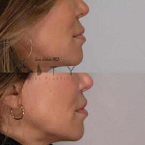 Lip Lift Revision Case 4   NYC Lip Lift Revision Surgery