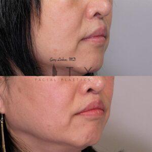 Lip Lift Revision Case 3   NYC Lip Lift Revision Surgery