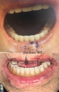 Lip Reconstruction Case 1 | NYC Lip Reconstruction Surgery, New York Lip Trauma Repair