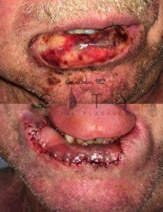 Lip Reconstruction Case 2 | NYC Lip Reconstruction Surgery, New York Lip Trauma Repair