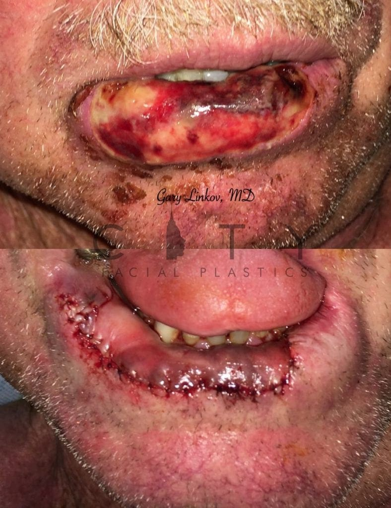 Lip Reconstruction Case 2 | NYC Lip Reconstruction Surgery, New York Lip Trauma Repair