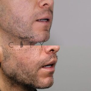 Male Plastic Surgery Lip Lift Case 2   NYC City Facial Plastics