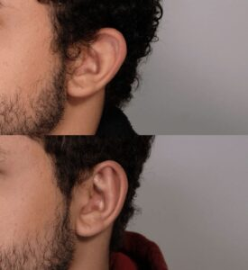 Male Plastic Surgery Otoplasty Case 1   NYC City Facial Plastics