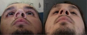 Male Plastic Surgery Rhinoplasty Case 3   NYC City Facial Plastics