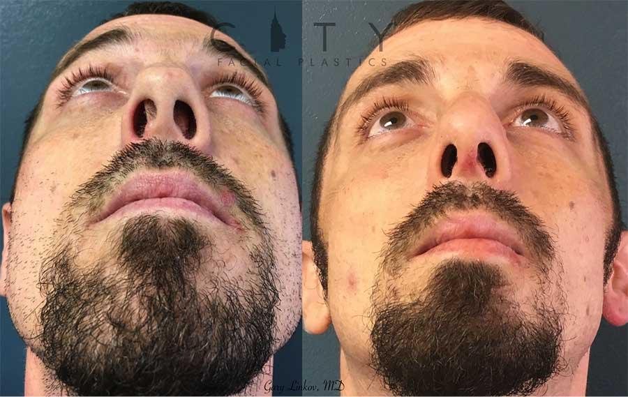 Male rhinoplasty case 3 | NYC Male Rhinoplasty