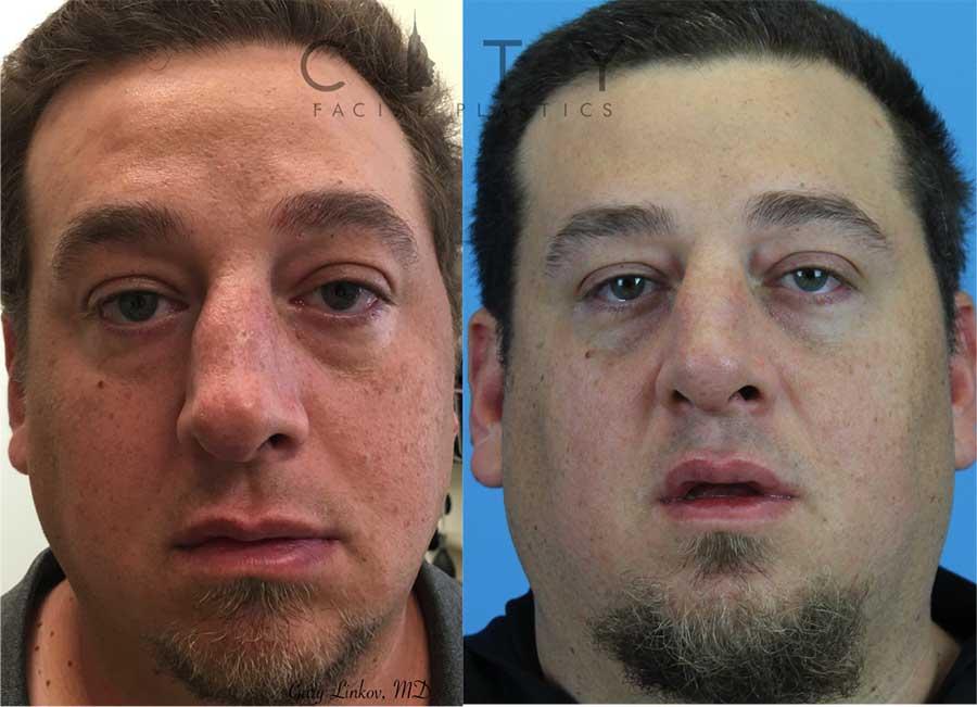 Male rhinoplasty case 2 | NYC Male Rhinoplasty
