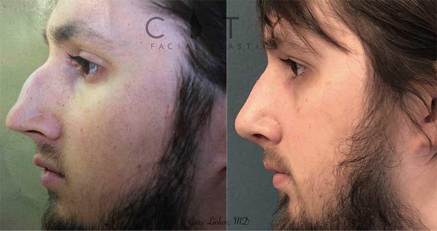 Male rhinoplasty case 1 | NYC Male Rhinoplasty