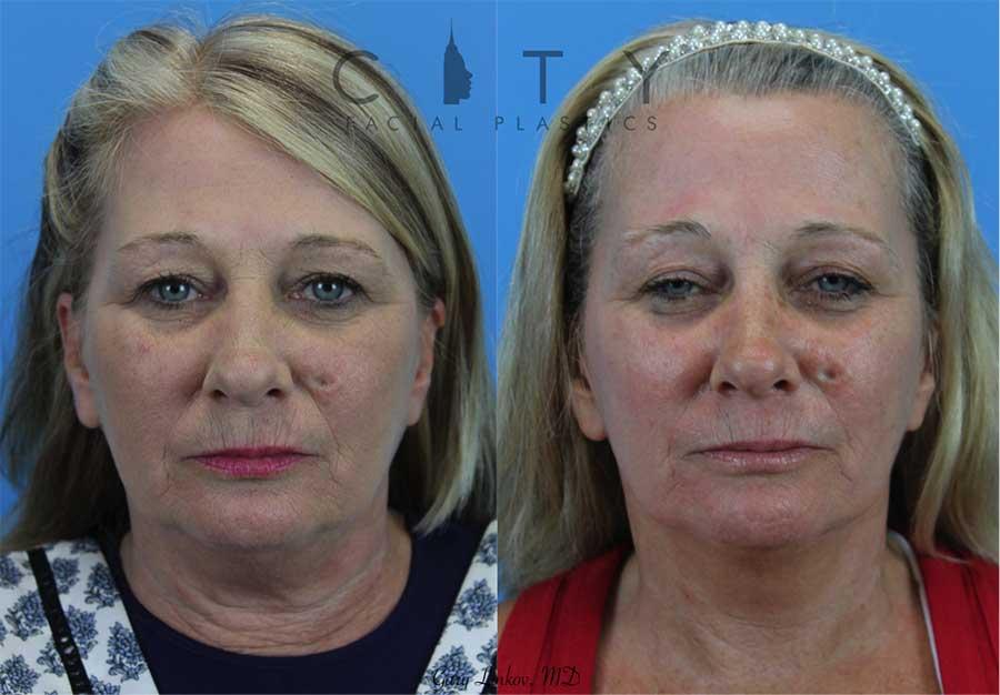 Neck Lift Case 2   NYC Neck Lift Surgery, New York Lower Rhytidectomy