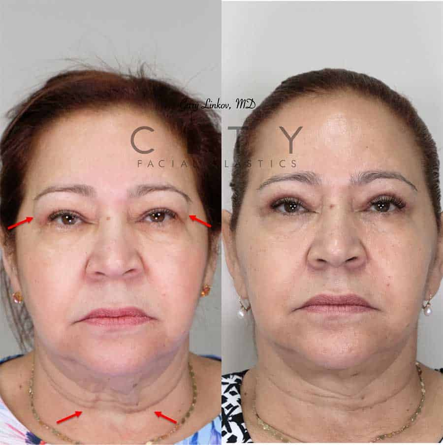 Neck Lift Case 3 | NYC Neck Lift Surgery, New York Lower Rhytidectomy