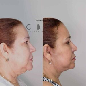 Neck Lift Case 3   NYC Neck Lift Surgery