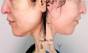 Neck Lift Case 1   NYC Neck Lift Surgery