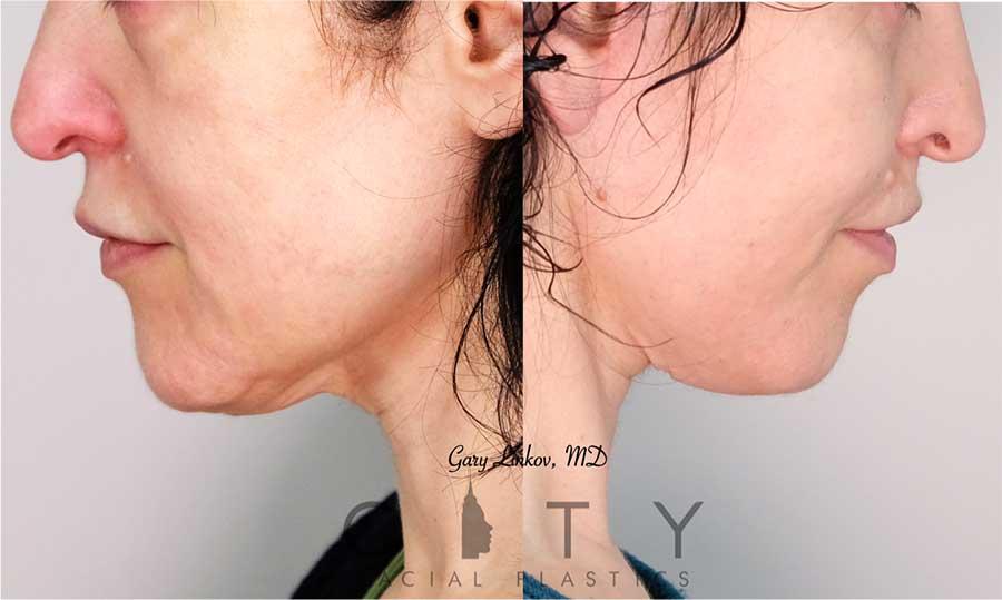 Neck Lift Case 1 | NYC Neck Lift Surgery