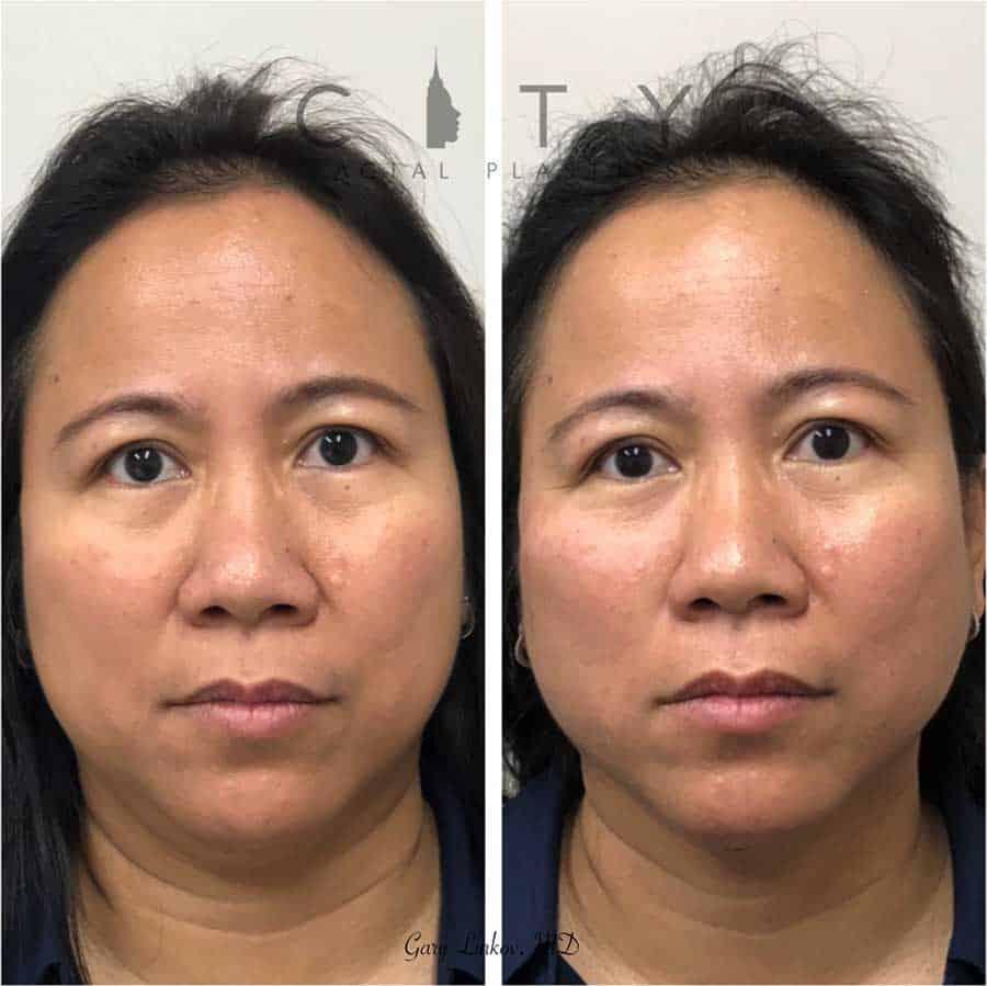 Non-surgical facelift threads Case 1 | NYC Non-Surgical Facelift