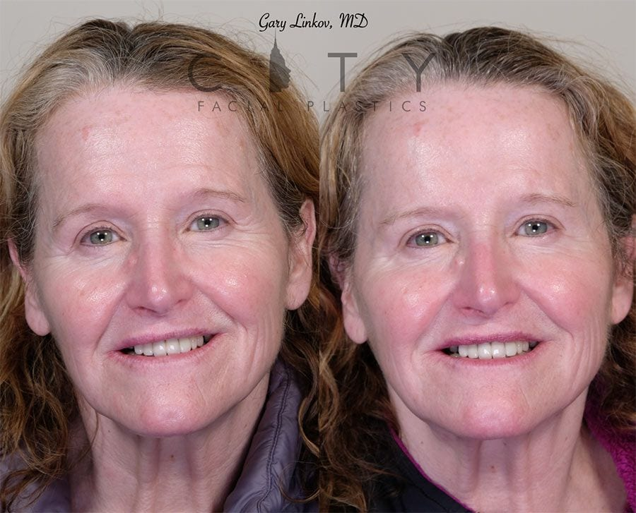 Non-surgical facelift filler/neurotoxin Case 2 | New York Minimally Invasive Facelift